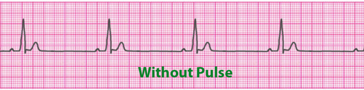 pulseless-electrical-activity-pea