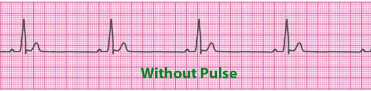 Acls Algorithms 2019 Advanced Cardiac Life Support