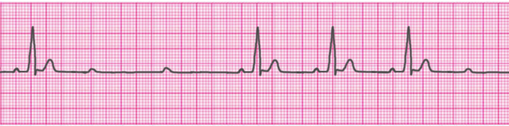 second-degree-atrioventricular-block-type-2-mobitz-2-hay