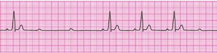 second-degree-atrioventricular-block-type-2-mobitz-2-hay