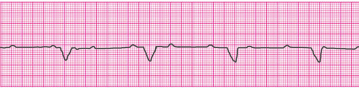 third-degree-atrioventricular-block-complete-heart-block