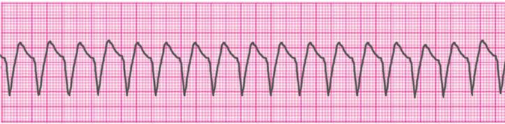 ventricular-tachycardia-monomorphic
