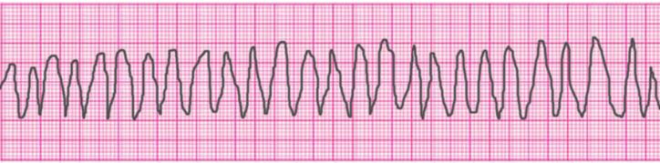 ventricular-tachycardia-polymorphic