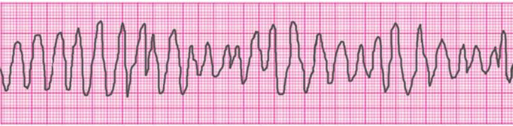 ventricular-tachycardia-torsades-de-pointes