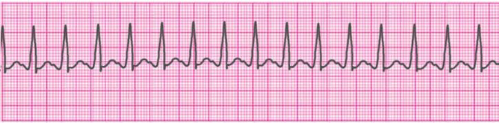 atrial-tachycardia