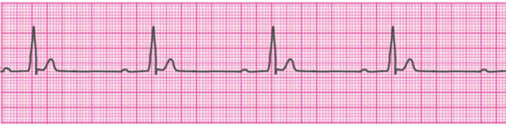first-degree-atrioventricular-block