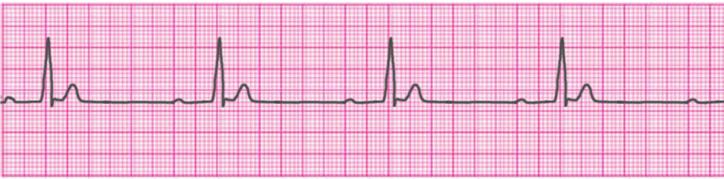 first-degree-atrioventricular-block