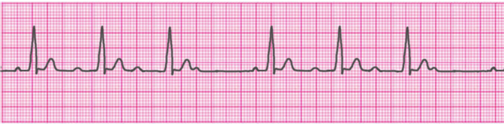 second-degree-atrioventricular-block-type-1-mobitz-1-wenckebach