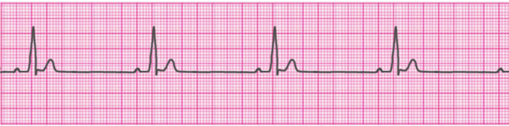 sinus-bradycardia