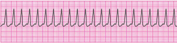 supraventricular-tachycardia